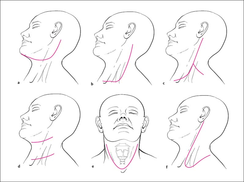 Surgery Of The Neck