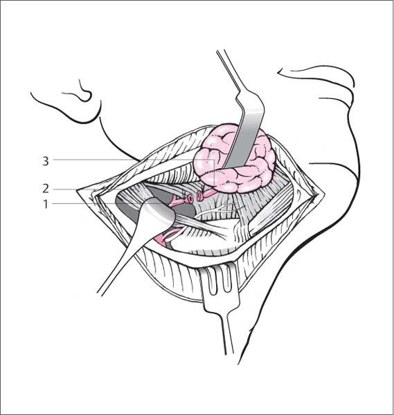 Surgery of the Salivary Glands | Ento Key