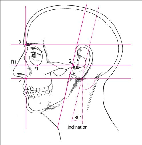 Surgery Of The Auricle And Ear Canal Ento Key