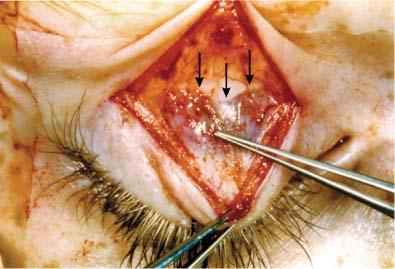 Revision Ptosis Surgery Ento Key