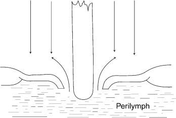 Cause Of Primary Perilymph Fistula