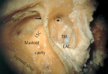 Concepts And Principles Of Restitutional Ear Surgery