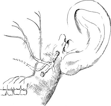 Malformations of the Ear and Temporal Bone | Ento Key