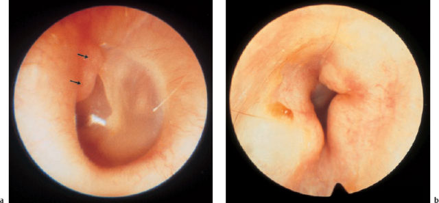 Tumors and Tumor-Like Lesions of the External Ear | Ento Key