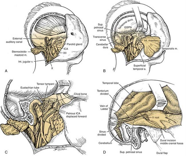 Temporal Bone Neoplasms And Lateral Cranial Base Surgery Ento Key