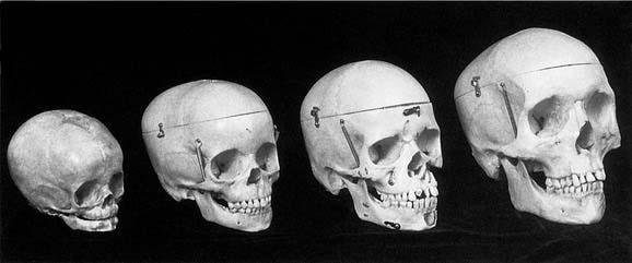 Cranio facial infants clifton