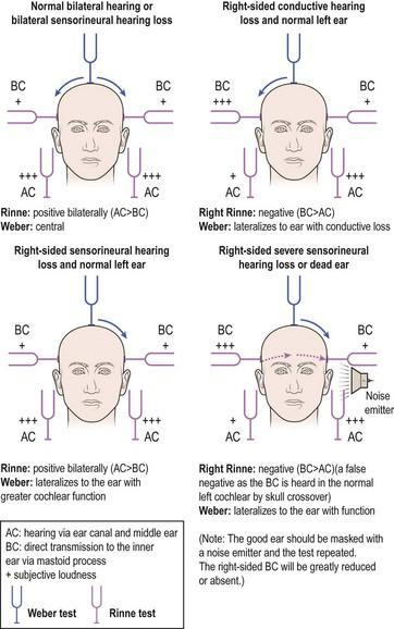the ear | ento key, Skeleton
