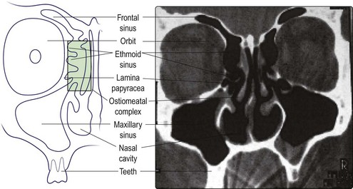 Nose and Paranasal Sinuses | Ento Key