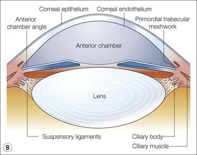 Anterior segment: developmental anomalies | Ento Key