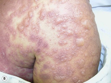 stevens johnson Stevens-johnson syndrome is a potentially deadly skin disease that usually  results from a drug reaction another form of the disease is called toxic  epidermal.