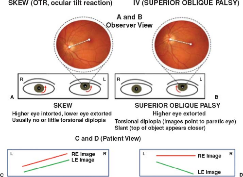 Supranuclear And Internuclear Ocular Motor Disorders