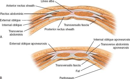 The Total Hard Palate Defect: Rectus Abdominis Free Flap | Ento Key