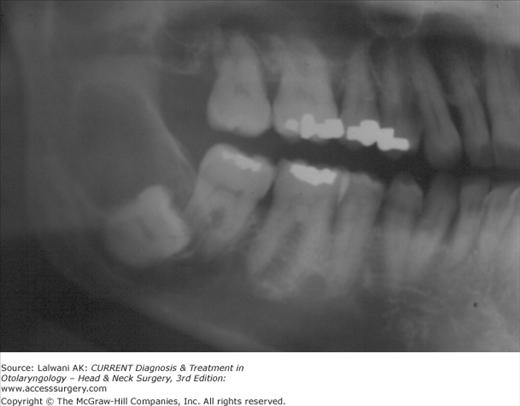 Jaw Cysts | Ento Key