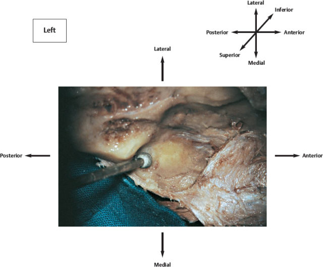 Popliteal Fossa Anatomy and Contents | Bone and Spine