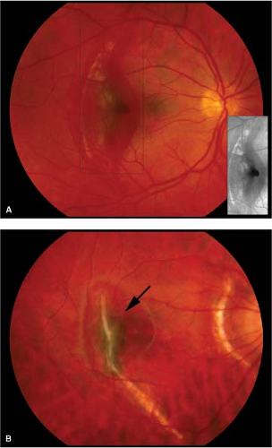 B Chronic Choroidal Rupture Yellow Crescent Shaped Site With Pigmented Neovascularization Arrow And Associated