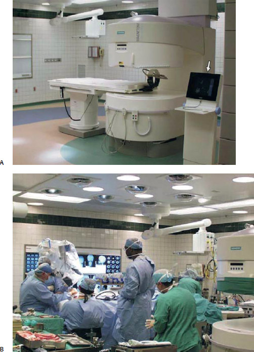 Endoscopic Room: Limited Utility Of Intraoperative MRI In Endoscopic
