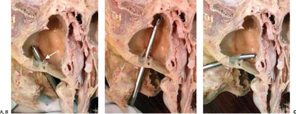 Generic stromectol