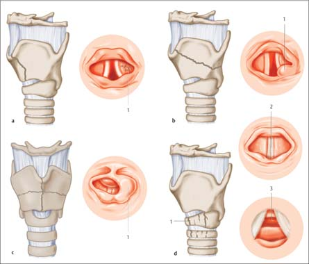 Diagnosing Injuries Of The Larynx And Trachea Ento Key