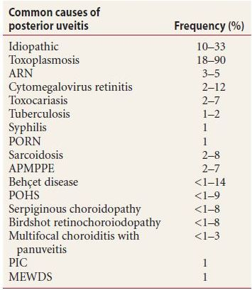 table 91 frequency of posterior uveitis