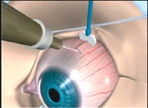 Steroid shots for macular degeneration turinabol pharmacom labs review