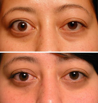Noninvasive Minimally Invasive And Surgical Pearls For Cosmetic