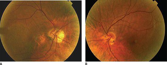 16 optic nerve abnormalities in pediatric ocular diseases