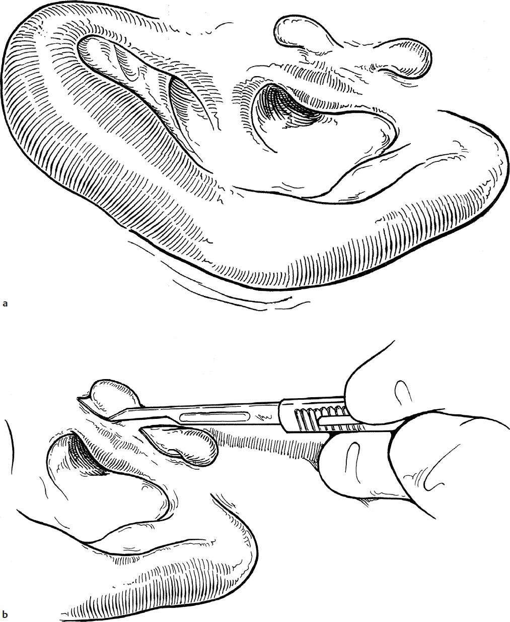Congenital Malformations of the Ear | Ento Key