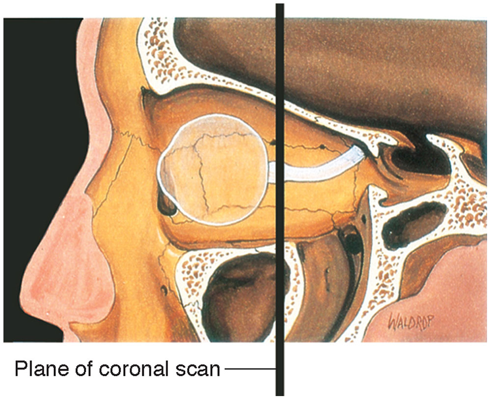Orbit and Ocular Adnexa | Ento Key