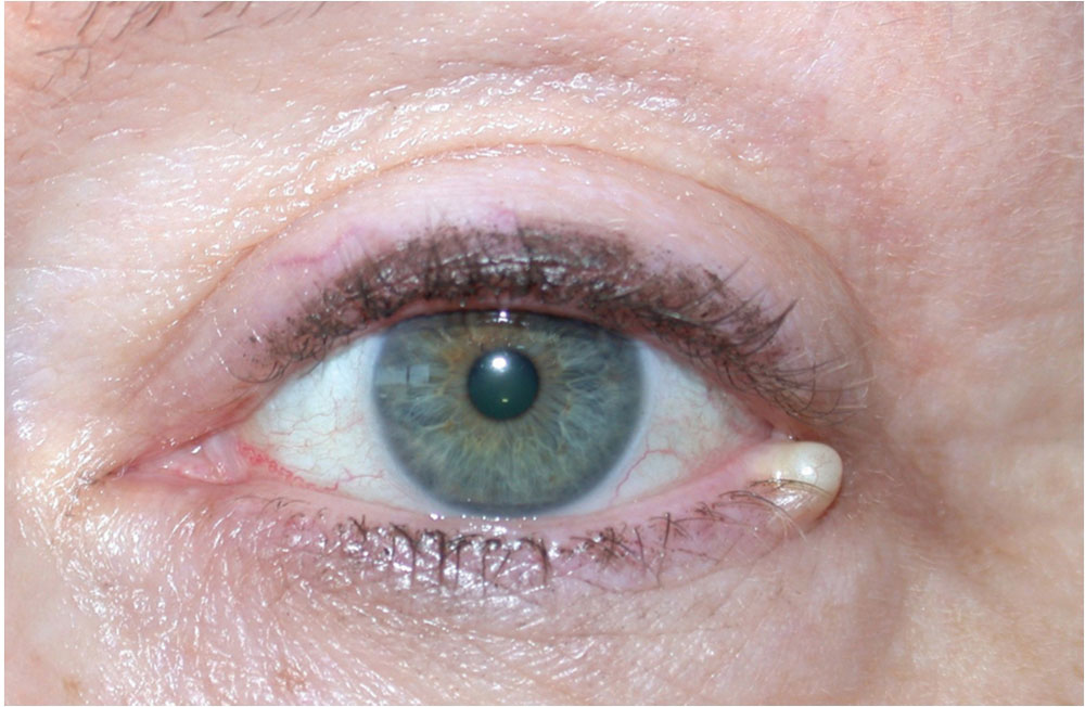 Classification And Management Of Eyelid Disorders