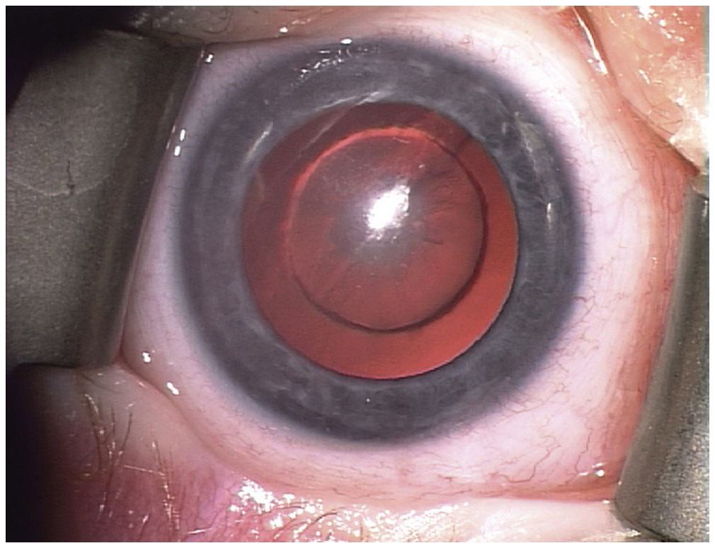 Christmas Tree Cataracts Congenital Disorders Of The Lens