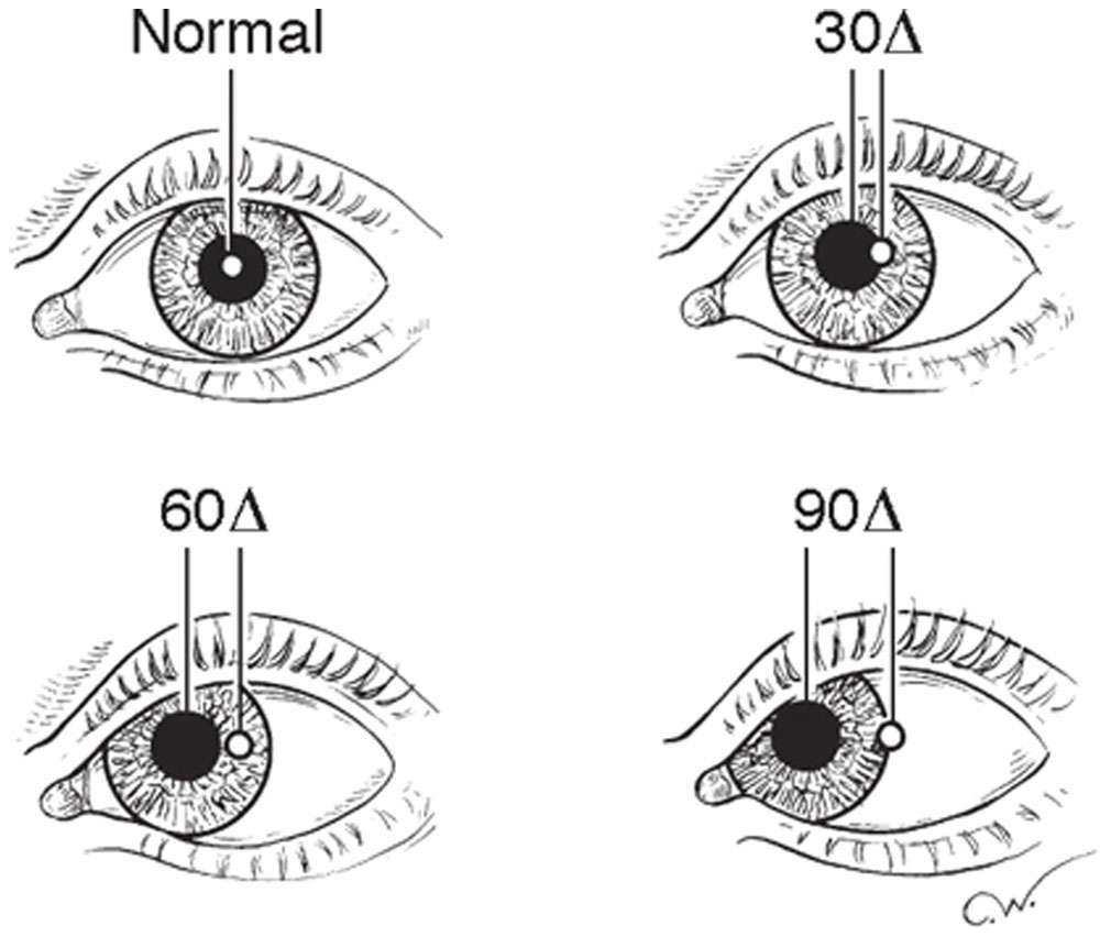 Diagnostic Evaluation of Strabismus and Torticollis | Ento Key