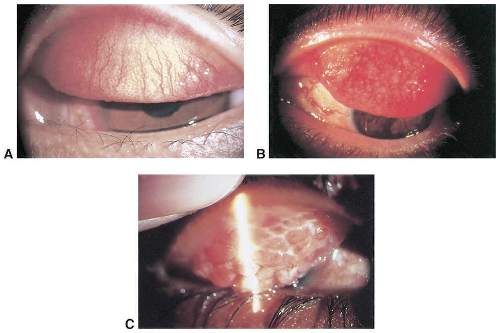 clinical approach to ocular surface disorders ento key