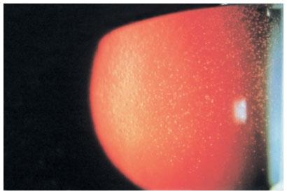 corneal dystrophies and ectasias ento key
