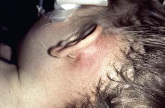 Complications of the Disease   Ento Key