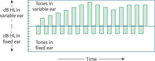 Behavioral Tests for Audiological Diagnosis | Ento Key