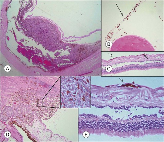Choroidal melanoma complications